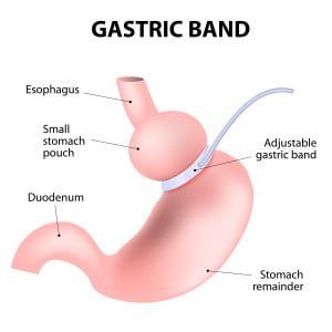 laparoscopic adjustable gastric band. lap-band, a band, or LAGB. Vector illustration